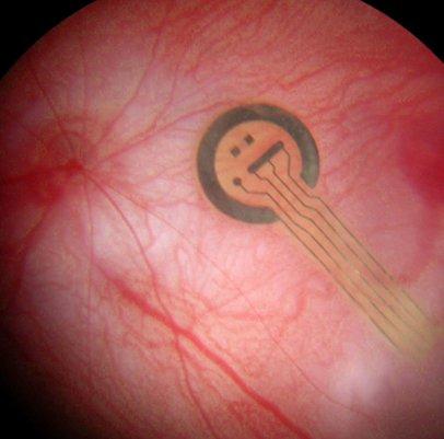 Implant de rétine artificielle © Inserm/Guyomard, Jean-Laurent