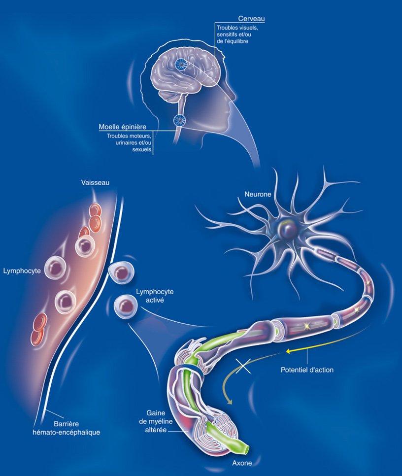 Schéma expliquant le fonctionnement de la sclérose en plaques