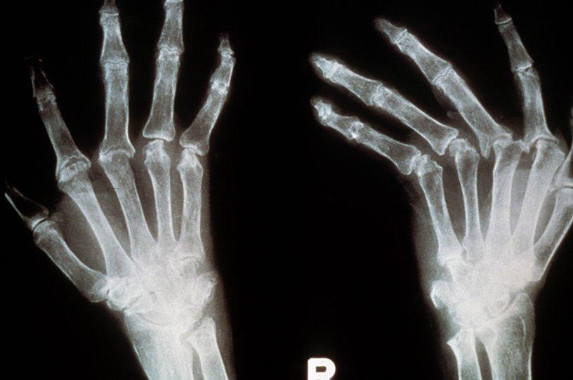 Radiographie de mains de patient atteint de polyarthrite rhumatoïde, déviation cubitale © Inserm/Cantagrel, Alain