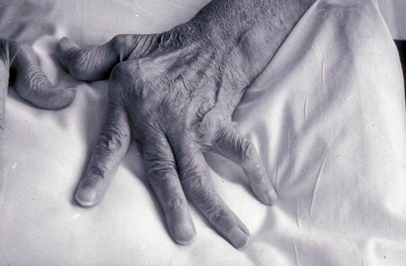 Main d'un patient souffrant de polyarthrite rhumatoïde © Inserm/Cantagrel, Alain