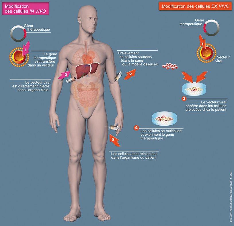 Les deux principales stratégies de thérapie génique
