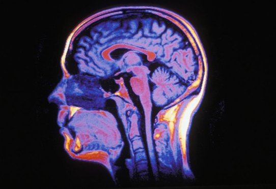 Cerveau humain en IRM, coupe sagittale.