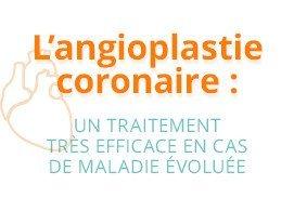 L'angioplastie cocranaire : un traitement très efficace en cas de maladie évoluée