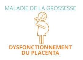 Maladie de la grossesse : dysfonctionnement du placenta