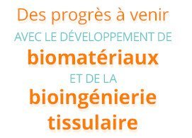 Des progrès à venir avec le développement de biomatériaux et de la bioingénierie tissulaire