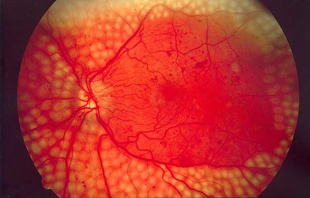 Ce fond d'œil montre la répartition des points de coagulation proposée par un logiciel de pilotage du laser pour traiter une rétinopathie diabétique. L'IA permet de dépister automatiquement les patients qui devraient pouvoir subir une telle intervention. © National Eye Institute, NIH