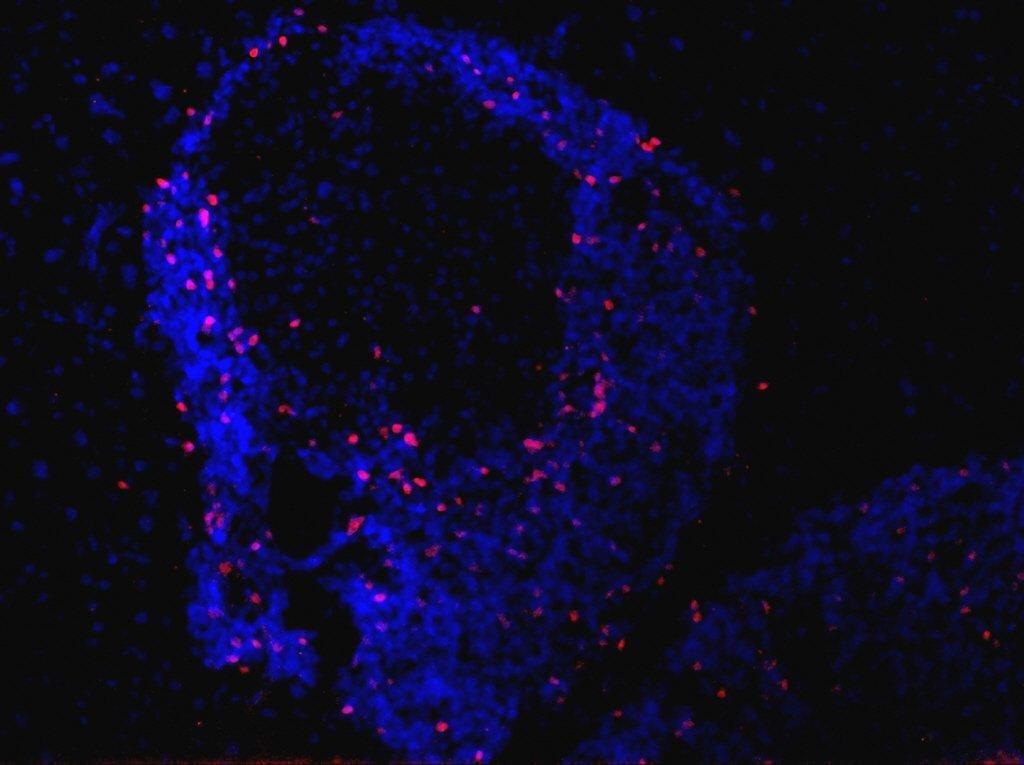 Image réalisée en microspopie par fluorescence