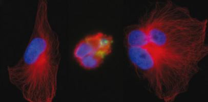 Le peptide (en vert) dans la cellule de glioblastome (au centre) provoque une destruction du réseau de microtubules (en rouge) ©Inserm/EA 3143