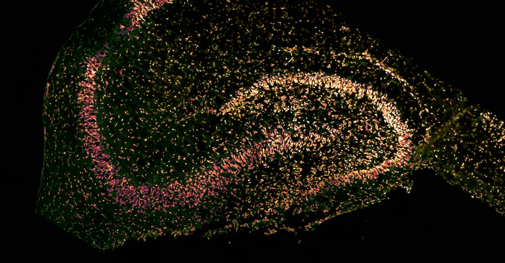 Section transversale d'hippocampe
