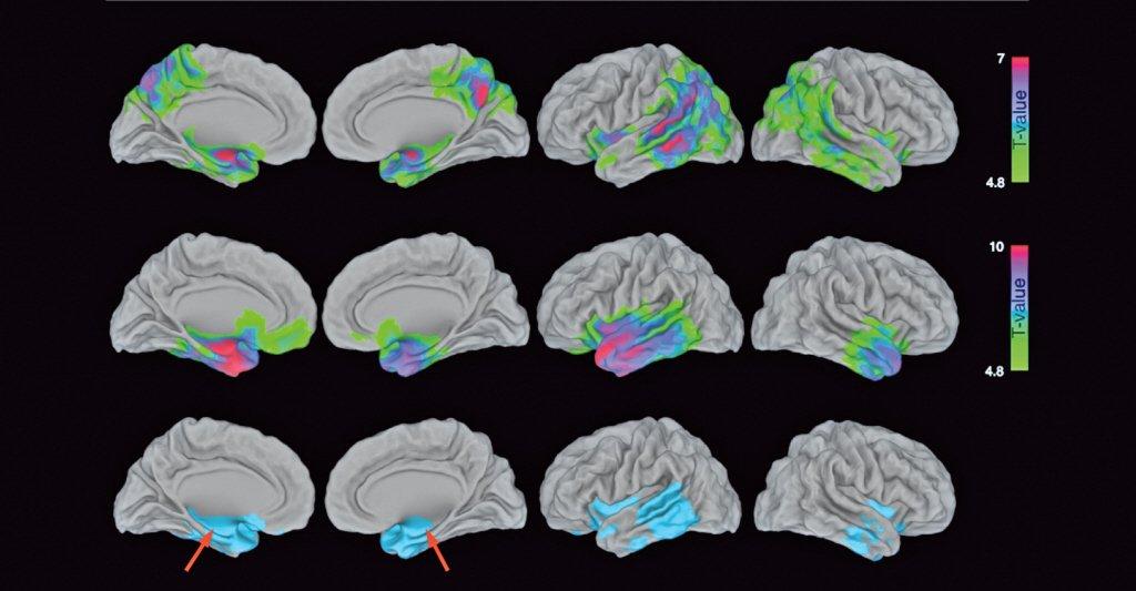 Maladie d'Alzheimer et démence sémantique