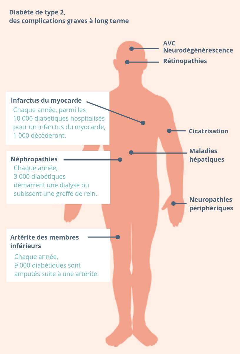 Chaque année en France, près de 10 000 diabétiques sont hospitalisés pour un infarctus du myocarde, et environ un sur dix en meurt. Près de 3 000, atteints de néphropathie, débutent une dialyse ou subissent une greffe de reins, alors qu'environ 9 000 sont amputés d'un membre inférieur suite à une artérite.