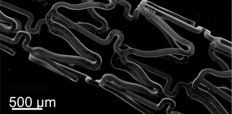 @@@@Stent sur lequel a été placé un biomatériau (polymère cationique polysaccharide). Cette technique permet le transfert local de médicament ou la délivrance d'ADN/ @@@@ARN dans la paroi artérielle, pour le traitement des complications de l'athérosclérose (en particulier des resténoses). © Inserm/Didier Letourneur