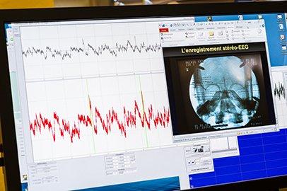 Analyse et comparaison d'un tracé d'enregistrements électro-encéphalographie (EEG), signaux cérébraux normal et épileptique