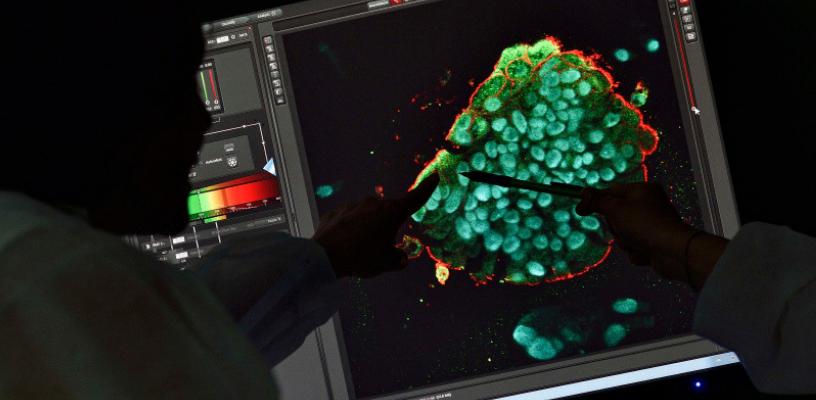 @@@@Organoïde de côlon en microscopie confocale