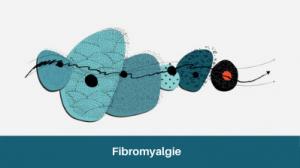 Inserm_EC_2020_Fibromyalgie_IAU.jpg