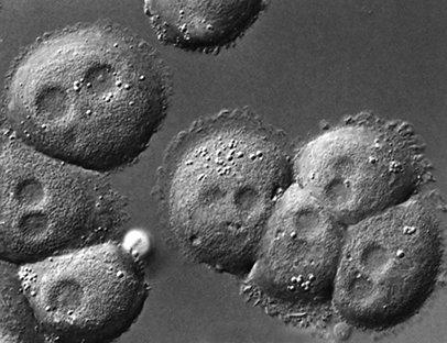 Hépatocytes en culture