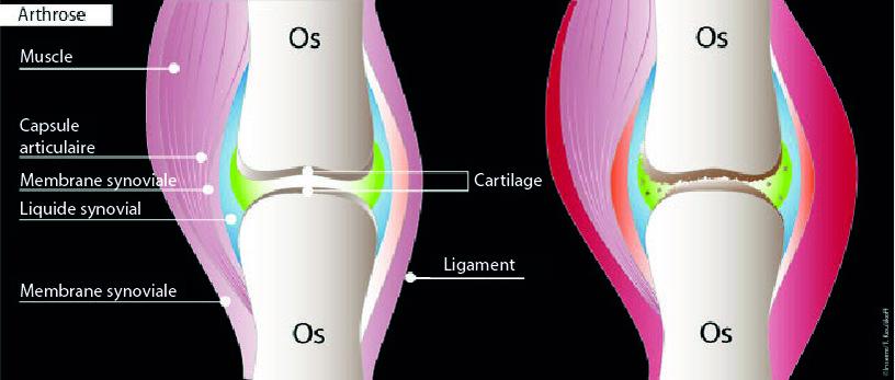 Schéma de l'arthrose