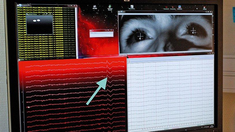 A l'écran, un marqueur de l'attention P300 est identifié sur l'enregistrement de l'activité électrique du cerveau (au centre de l'EEG)