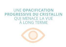 Une opacification progressive du cristallin qui menace la vue à long terme